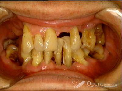 入歯治療 初診時