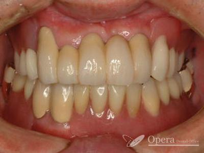 入歯治療終了時