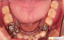保険適用 治療後 入歯装着