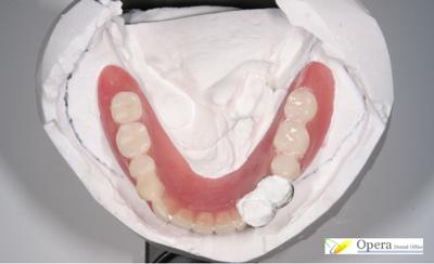 入歯噛み合わせ分析写真