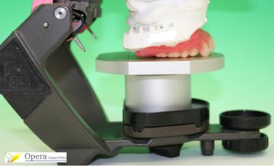入歯の修理