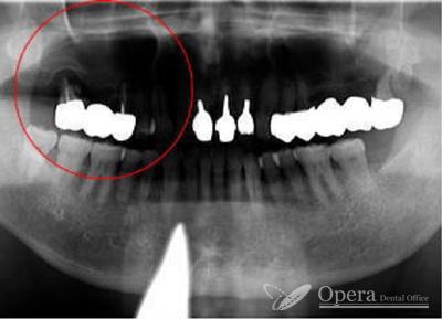 歯の全体写真