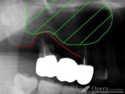 歯の全体写真 拡大