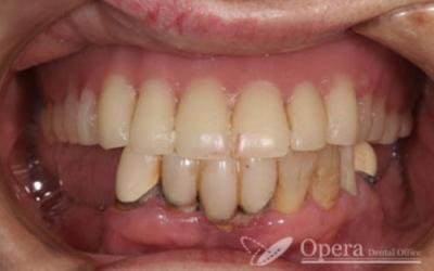 入歯治療前