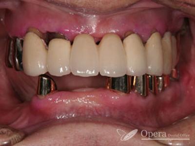 入歯 治療後