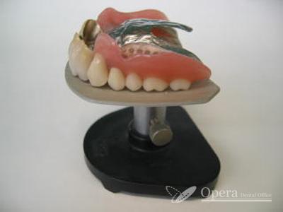 入歯 上顎