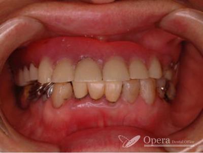 保険適用治療 歯並び写真