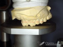 入歯 保険治療 前