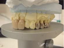 入歯 保険治療 例 治療後