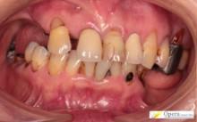 保険適用 入歯治療前 写真