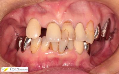 保険適用 入歯 治療後