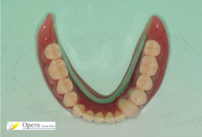 レジリエンツテレスコープデンチャー義歯